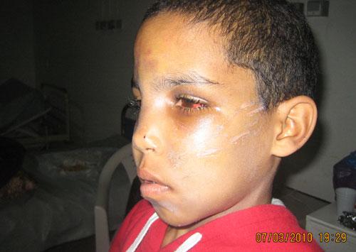 طفل من بركان يتعرض للتعذيب من طرف خليل والدته