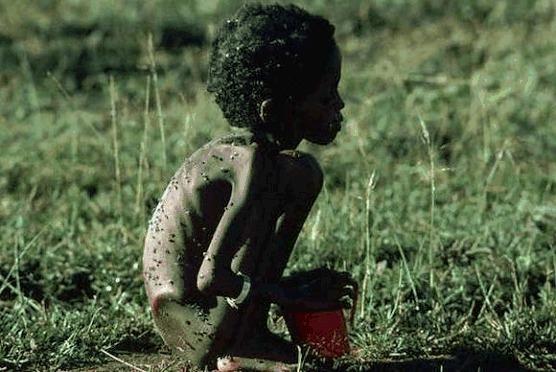 نداءات دولية مستمرة لمواجهة أزمة المجاعة بمنطقة القرن الإفريقي