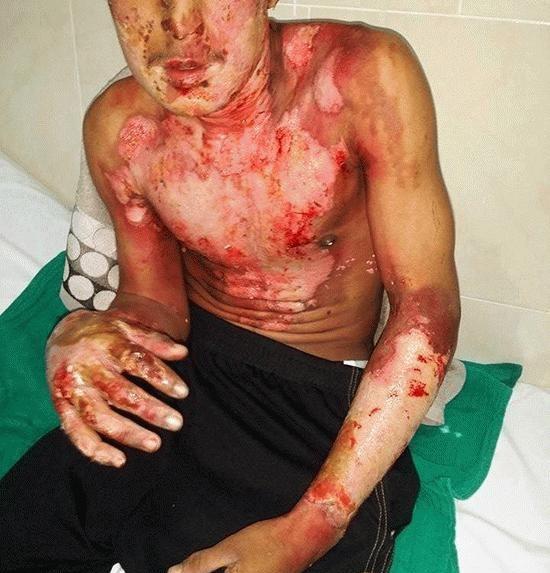 """خطير وبالصور: """"الدوليو"""" كاد يودي بحياة متشرد بعدما أحرقت كامل جزئه العلوي من الجسد بالناظور"""