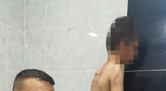 حقيقة تداول صورة طفل من كركوك على أنه طفل مغربي تعرض للتعذيب بإمزورن