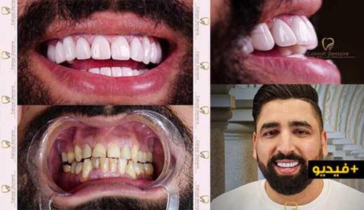 شاهد : بعد نجاح هوليود سمايل كيف غيرت عيادة الشلالي ابتسامة الفنان الكوميدي بوزيان